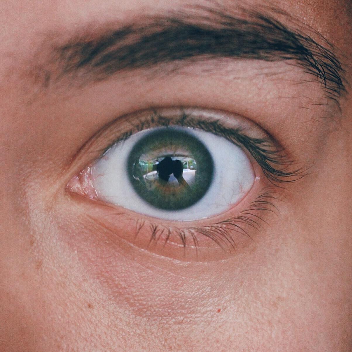 Slitage på ögonfransar
